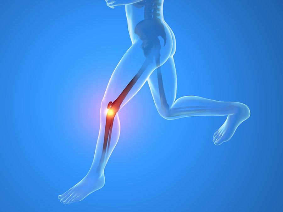 Cuidar nuestras rodillas al correr