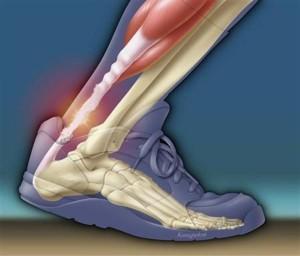 Las 5 lesiones de corredores más problemáticas